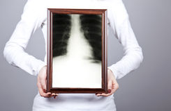 Girl keep frame with x-ray inside. Royalty Free Stock Images