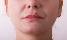 Girl lip herpes diseased. Girl lip diseased herpes. scabs on the stage of drying royalty free stock photography