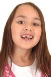 Girl loosing her teeth. Stock Photos
