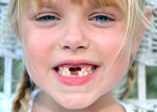 Girl missing teeth Royalty Free Stock Images