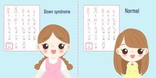 Girl with down syndrome concept. Girl with normal and down syndrome concept on blue background Stock Photography