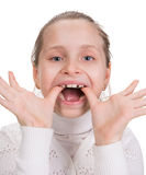 Girl putting on medical braces for orthodontic treatment. Over white royalty free stock photo