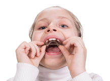 Girl putting on medical braces for orthodontic treatment. Over white stock image