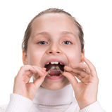 Girl putting on medical braces Royalty Free Stock Images