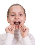 Girl putting on medical braces Royalty Free Stock Photo