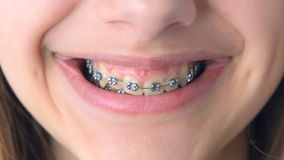Girl with retainer for teeth . Beautiful smiling girl with retainer for teeth stock footage