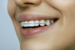 Girl with retainer on teeth. Smiling girl with retainer on teeth royalty free stock photo