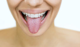Girl with retainer for teeth sticking her tongue out. Beautiful smiling girl with retainer for teeth sticking her tongue out, on white stock images