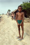 Girl in rural India. October 18,2011 Sonakhali,West Bengal,India,Asia-A portrait of a malnourished girl on the riverside embankment Royalty Free Stock Photos