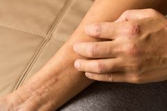 Girl`s hand with atopic dermatitis. The concept of health and me stock photos