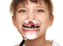 Girl show lost tooth through magnifying glass Royalty Free Stock Photography