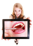 Girl showing ipad tablet touchpad with dental photo of teeth Royalty Free Stock Photography