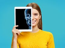 Girl shows X-ray of the skull. Photo of young girl with tablet in her hands. On blue background. Medical concept stock photos