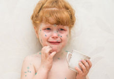 Girl, a sick chickenpox Royalty Free Stock Images