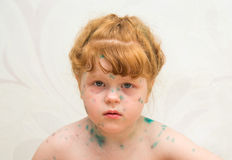 Girl, a sick chickenpox Stock Photos