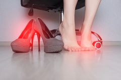 A girl is sitting on an office chair with a fungal infection on her legs, and a number of contagious shoes, copy space. Disease royalty free stock images