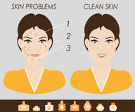 Girl with skin problems and clean skin vector illustration Royalty Free Stock Image