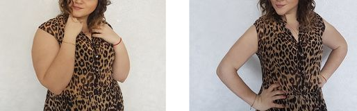 Girl slimming before and after the diet overweight royalty free stock image