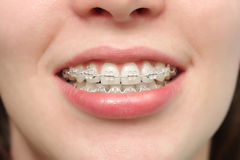 Girl smiles with braces Royalty Free Stock Photos