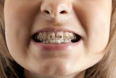 Girl smiles with bracket on teeth. Young beautiful girl smiles with bracket on teeth royalty free stock image