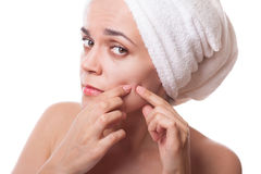 Girl  squeezing pimple Stock Images