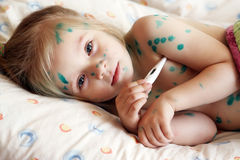 Girl suffers chickenpox Royalty Free Stock Image