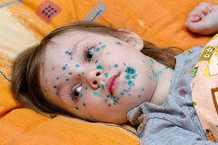 The girl suffers chickenpox Stock Photography