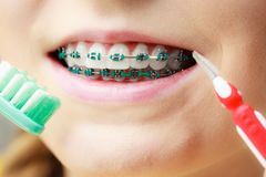 Girl with teeth braces using interdental and traditional brush. Dentist and orthodontist concept. Young woman with blue braces cleaning and brushing teeth using Royalty Free Stock Photography