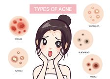Girl and type of acne. royalty free illustration