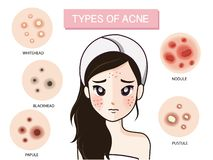 Girl and type of acne. vector illustration