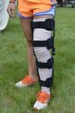 Girl wearing leg brace Royalty Free Stock Image