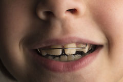 Girl wearing an orthodontic dental apparatus. Closeup of smiling little girl wearing an orthodontic dental apparatus for correcting the position of teeth Stock Photography