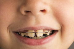 Girl wearing an orthodontic dental apparatus. Closeup of smiling little girl wearing an orthodontic dental apparatus for correcting the position of teeth Royalty Free Stock Photos