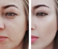 Girl wrinkles eyes before and after procedures, bags, bloating. Dermatology royalty free stock images