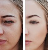 Girl wrinkles eyes before and after removal procedures, bags, bloating. Girl wrinkles eyes before and after procedures, bags, bloating dermatology removal stock images