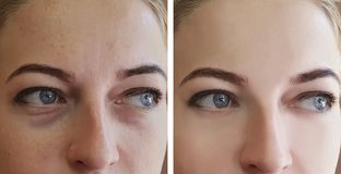 Girl wrinkles eyes before and after treatments removal bags. Girl wrinkles eyes before and after treatments correction removal bags royalty free stock photography