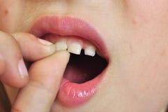 Giro excéntrico del diente imagenes de archivo