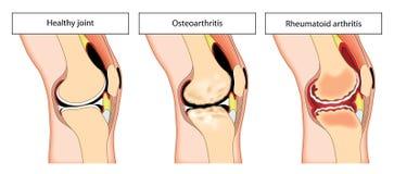 Giunto di ginocchio artritico Fotografie Stock Libere da Diritti