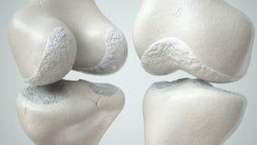 Giunto di ginocchio con perdita della cartilagine dovuto la rappresentazione anteriore e retro- 3D di Arthose, Immagine Stock Libera da Diritti