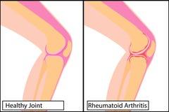 Giunto di ginocchio sano ed illustrazione medica di vettore di artrite reumatoide royalty illustrazione gratis