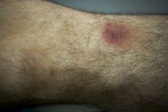 Giusto ascesso della gamba in paziente maschio immagine stock libera da diritti