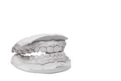 Gjuta av mänskliga tänder Royaltyfri Foto