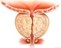 Glándula de próstata - hiperplasia prostática benigna BPH Fotografía de archivo libre de regalías