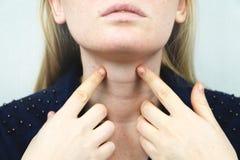 Glándula tiroides Retrato del primer de la mujer rubia joven enferma linda en el top blanco que tiene garganta dolorida, llevando imágenes de archivo libres de regalías