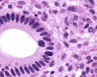 Glándula uterina Fotos de archivo libres de regalías