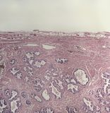 Glândula humana da próstata, microscópica Imagens de Stock Royalty Free