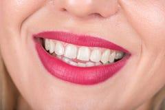 Glückliches Frauengesicht mit offenem Mund Heller roter Lippenstift gebräuchlich Weiße Zähne Abschluss oben Lizenzfreie Stockfotos