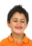 Glückliches Kind mit der Verfehlung der vorderen Zähne Stockbilder