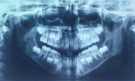 Glühen und leuchtender MRI-Scan Lizenzfreies Stockfoto
