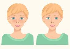 Gladlynt gullig ung flicka med fräknar och samma flicka utan fr Royaltyfria Bilder